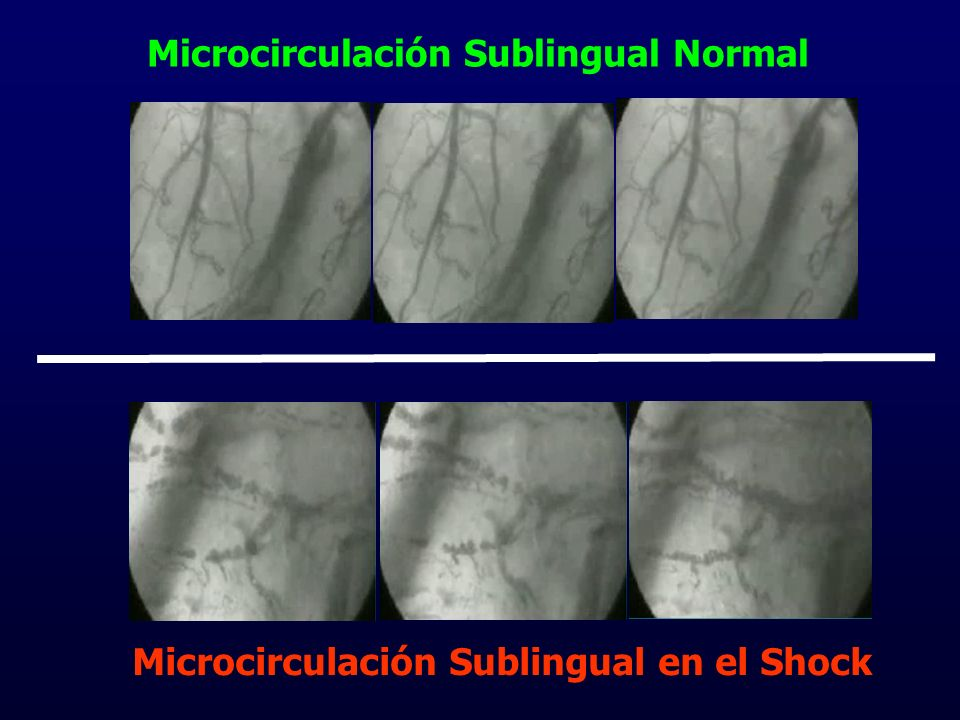 Microcirculación Sublingual Normal