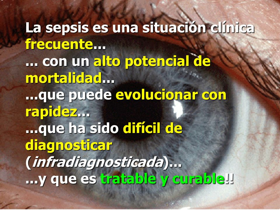 La sepsis es una situación clínica frecuente...