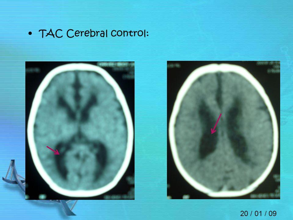 TAC Cerebral control: 20 / 01 / 09