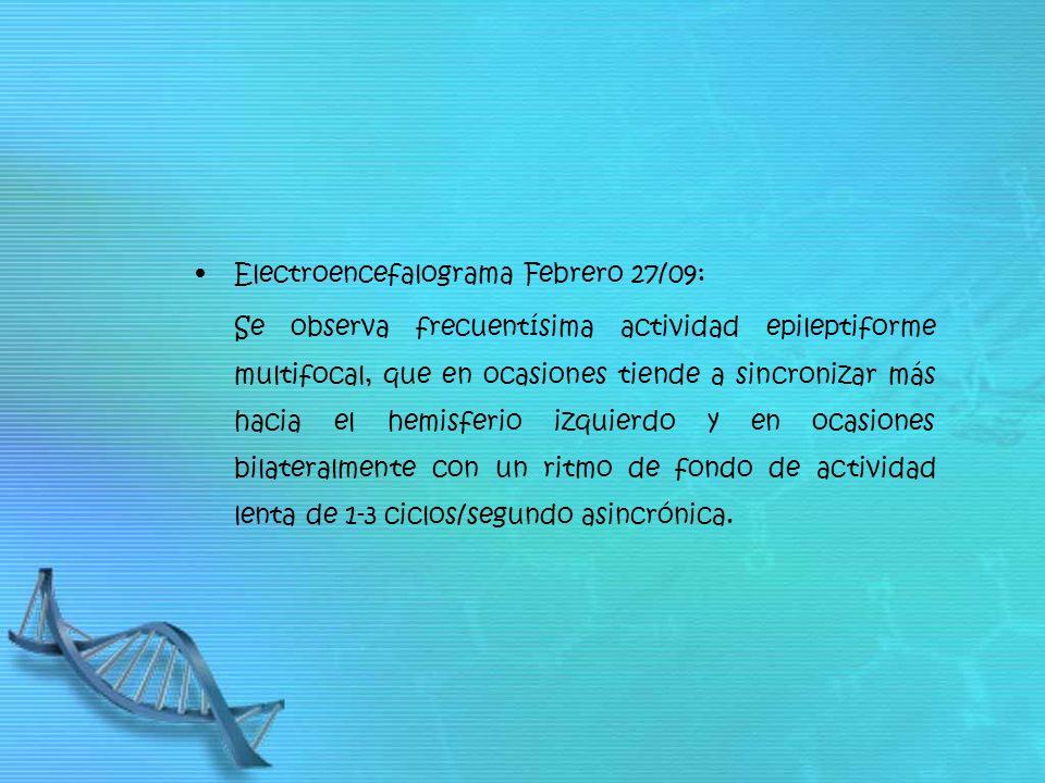 Electroencefalograma Febrero 27/09: