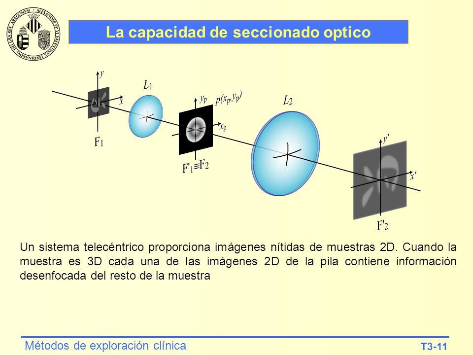 La capacidad de seccionado optico