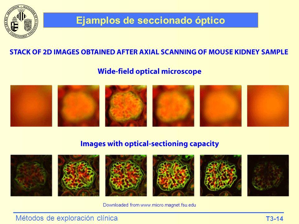 Ejamplos de seccionado óptico