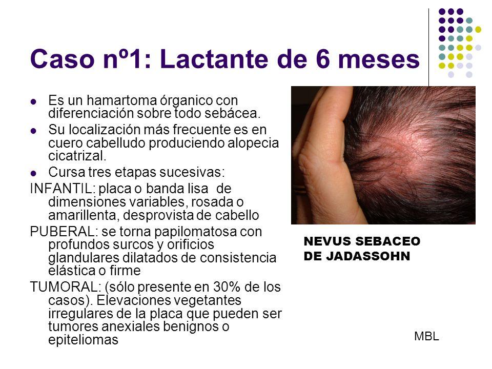 Caso nº1: Lactante de 6 meses