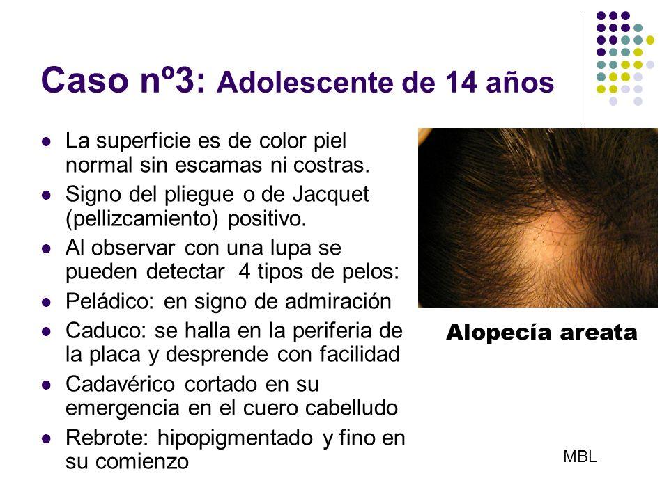 Caso nº3: Adolescente de 14 años