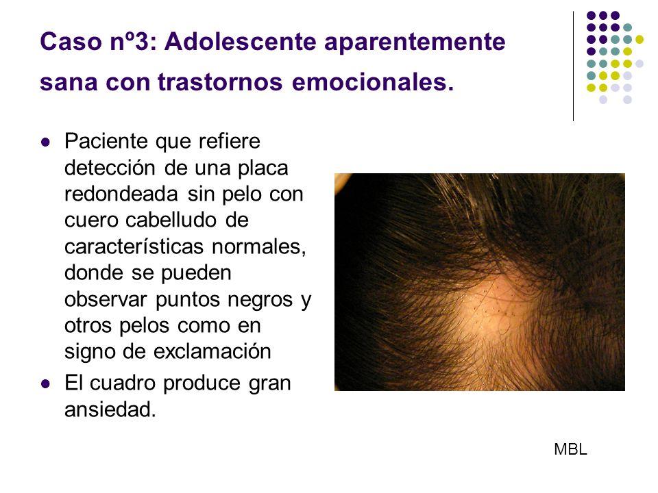 Caso nº3: Adolescente aparentemente sana con trastornos emocionales.