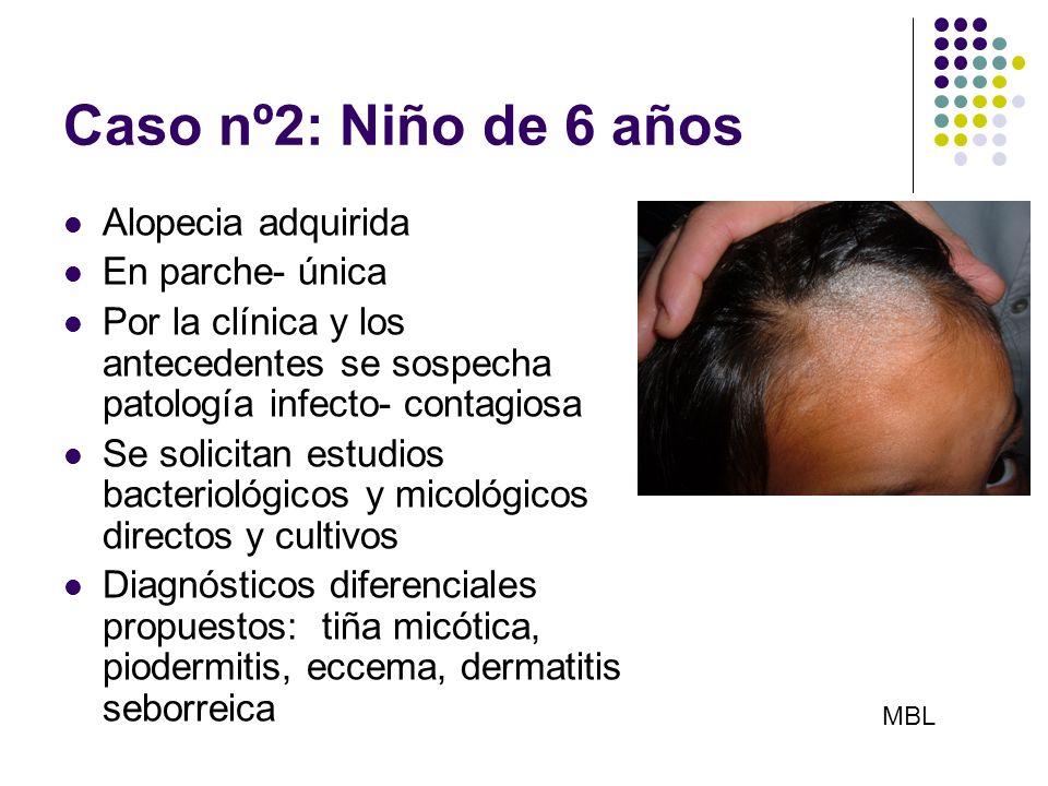 Caso nº2: Niño de 6 años Alopecia adquirida En parche- única