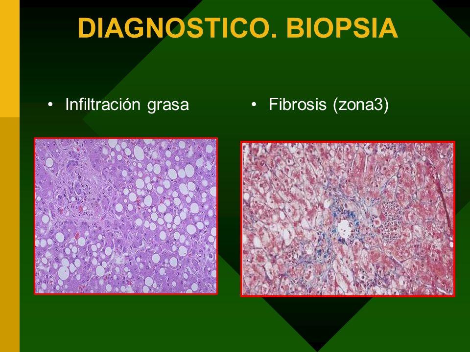 DIAGNOSTICO. BIOPSIA Infiltración grasa Fibrosis (zona3)
