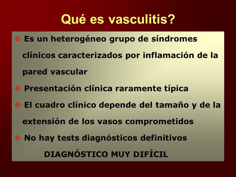 Qué es vasculitis Es un heterogéneo grupo de síndromes