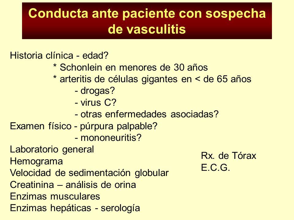 Conducta ante paciente con sospecha de vasculitis