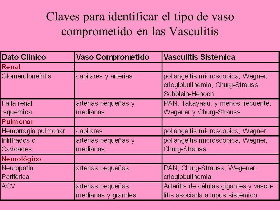 Claves para identificar el tipo de vaso comprometido en las Vasculitis