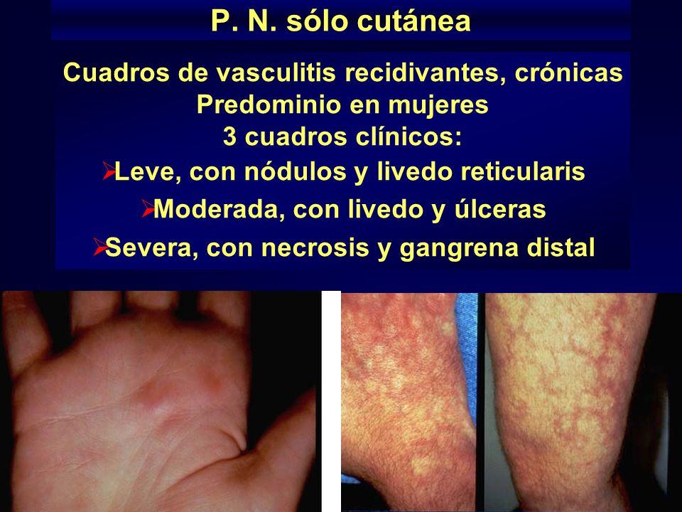 P. N. sólo cutánea Cuadros de vasculitis recidivantes, crónicas