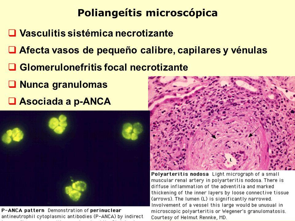 Poliangeítis microscópica