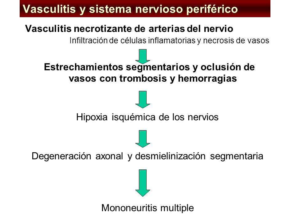 Vasculitis y sistema nervioso periférico