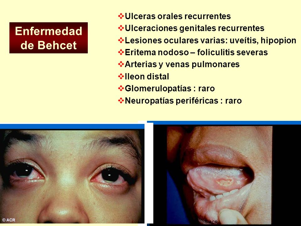 Enfermedad de Behcet Ulceras orales recurrentes