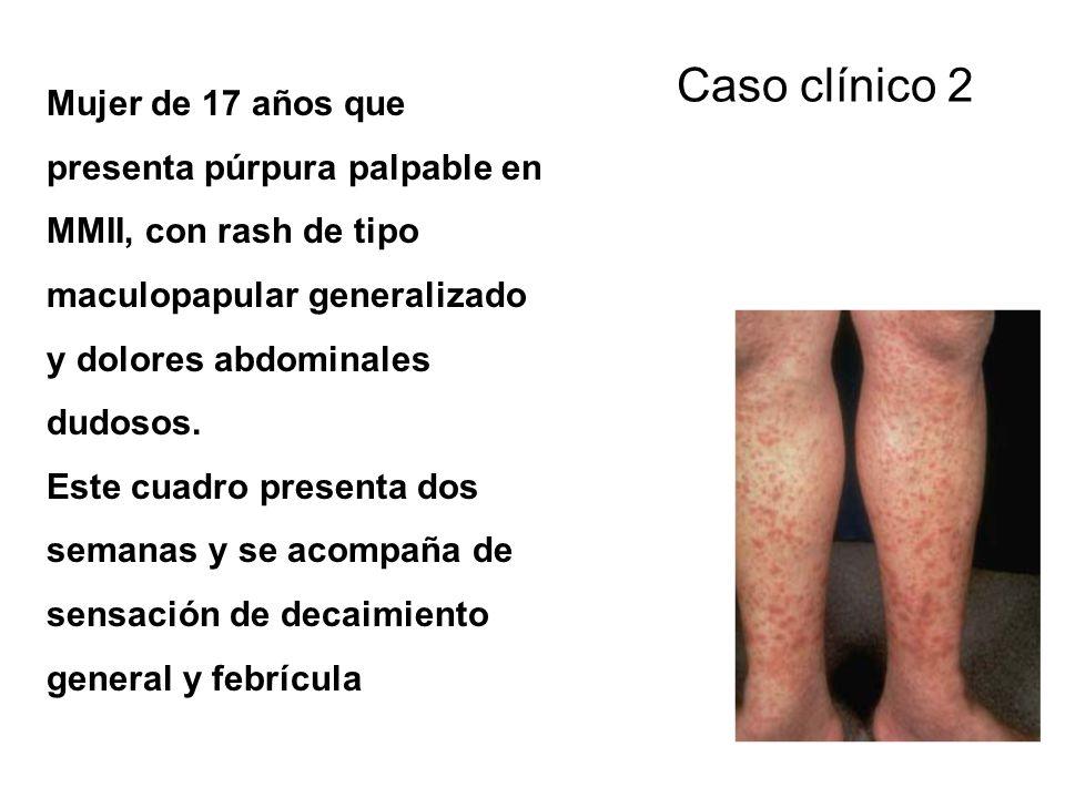 Caso clínico 2 Mujer de 17 años que presenta púrpura palpable en MMII, con rash de tipo maculopapular generalizado y dolores abdominales dudosos.