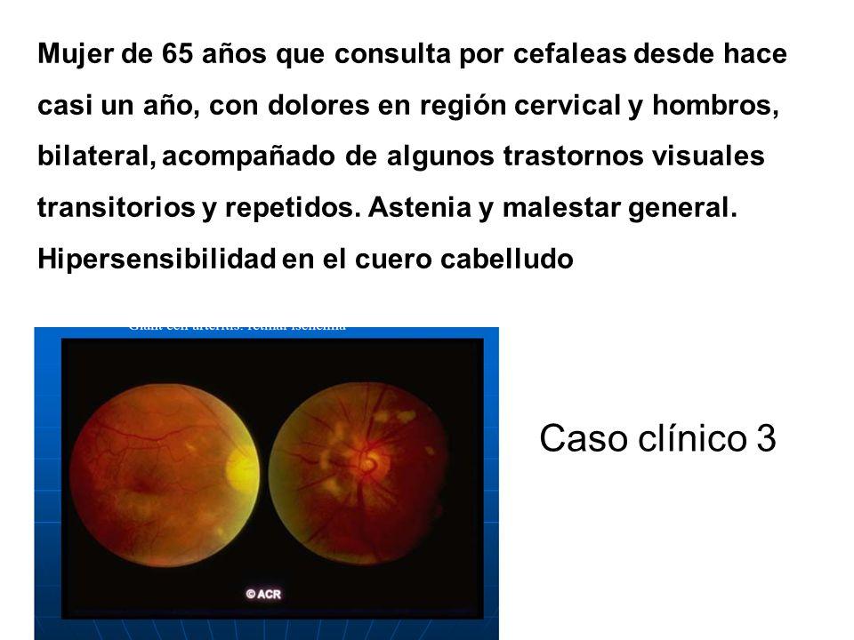 Mujer de 65 años que consulta por cefaleas desde hace casi un año, con dolores en región cervical y hombros, bilateral, acompañado de algunos trastornos visuales transitorios y repetidos. Astenia y malestar general. Hipersensibilidad en el cuero cabelludo
