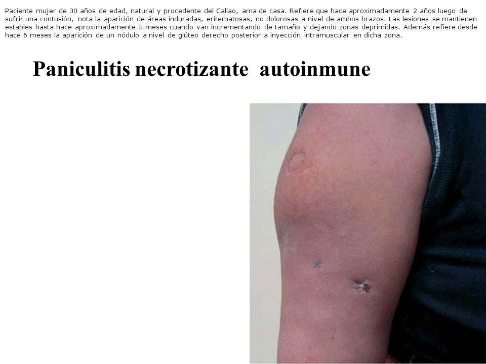 Paniculitis necrotizante autoinmune