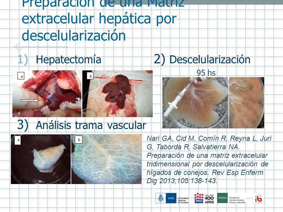 Preparación de una Matriz extracelular hepática por descelularización