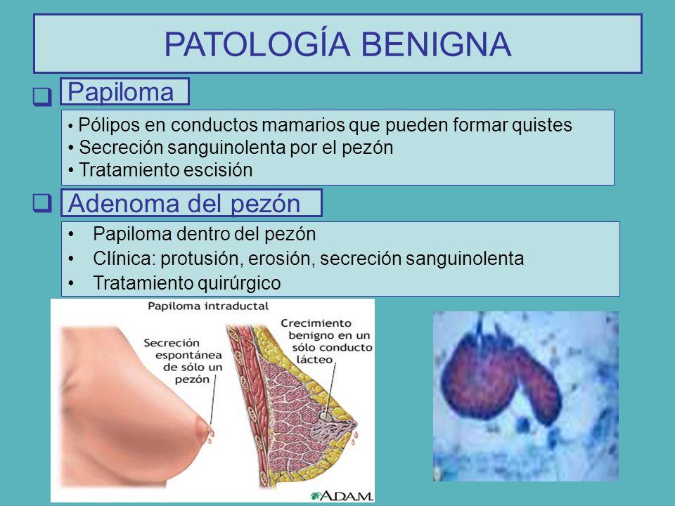 PATOLOGÍA BENIGNA Papiloma Adenoma del pezón