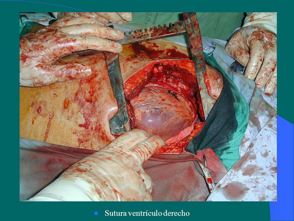 Sutura ventrículo derecho