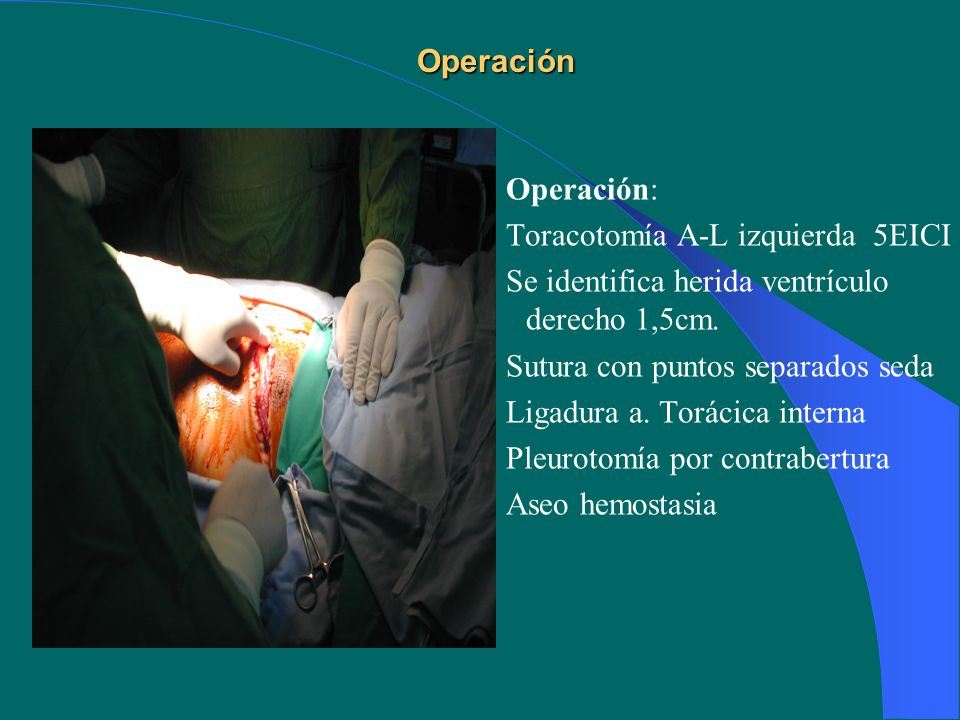Operación Operación: Toracotomía A-L izquierda 5EICI. Se identifica herida ventrículo derecho 1,5cm.