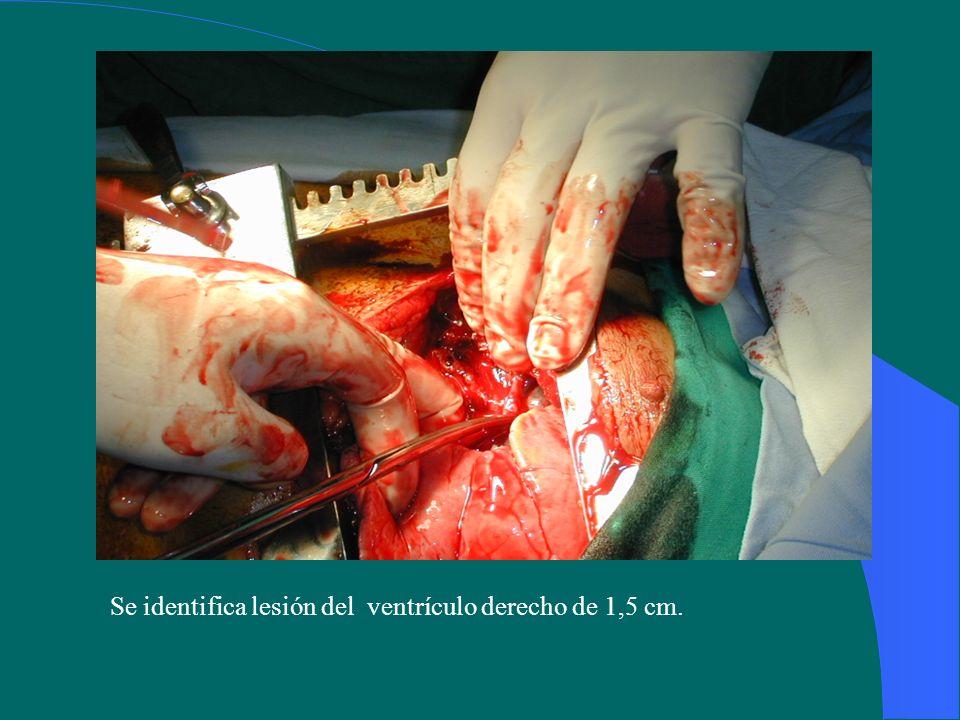 Se identifica lesión del ventrículo derecho de 1,5 cm.