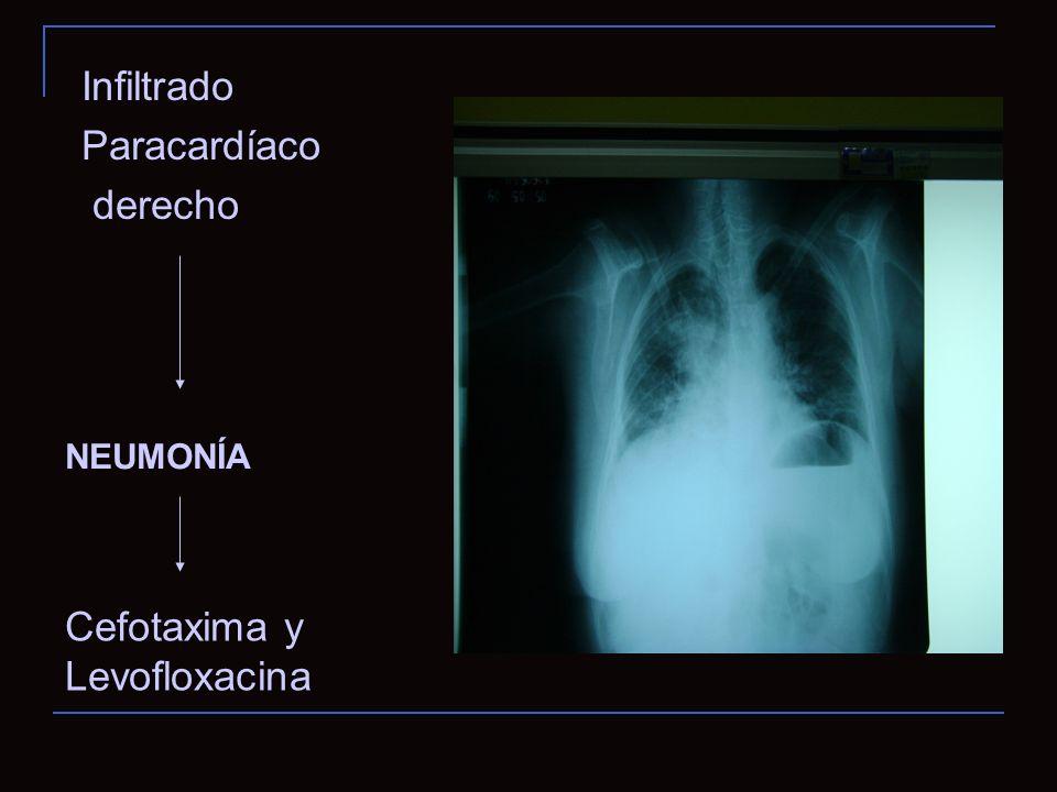 Cefotaxima y Levofloxacina