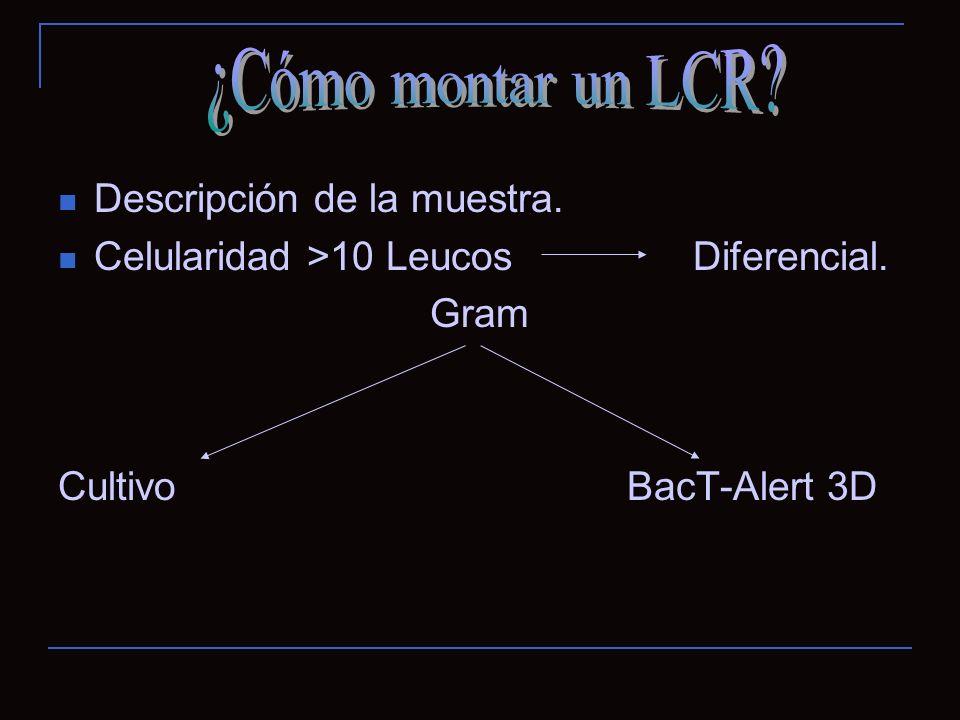 ¿Cómo montar un LCR Descripción de la muestra.