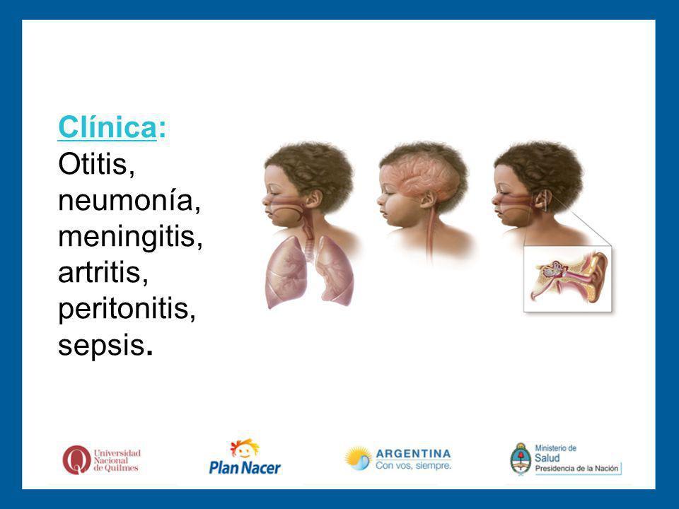 Clínica: Otitis, neumonía, meningitis, artritis, peritonitis, sepsis.
