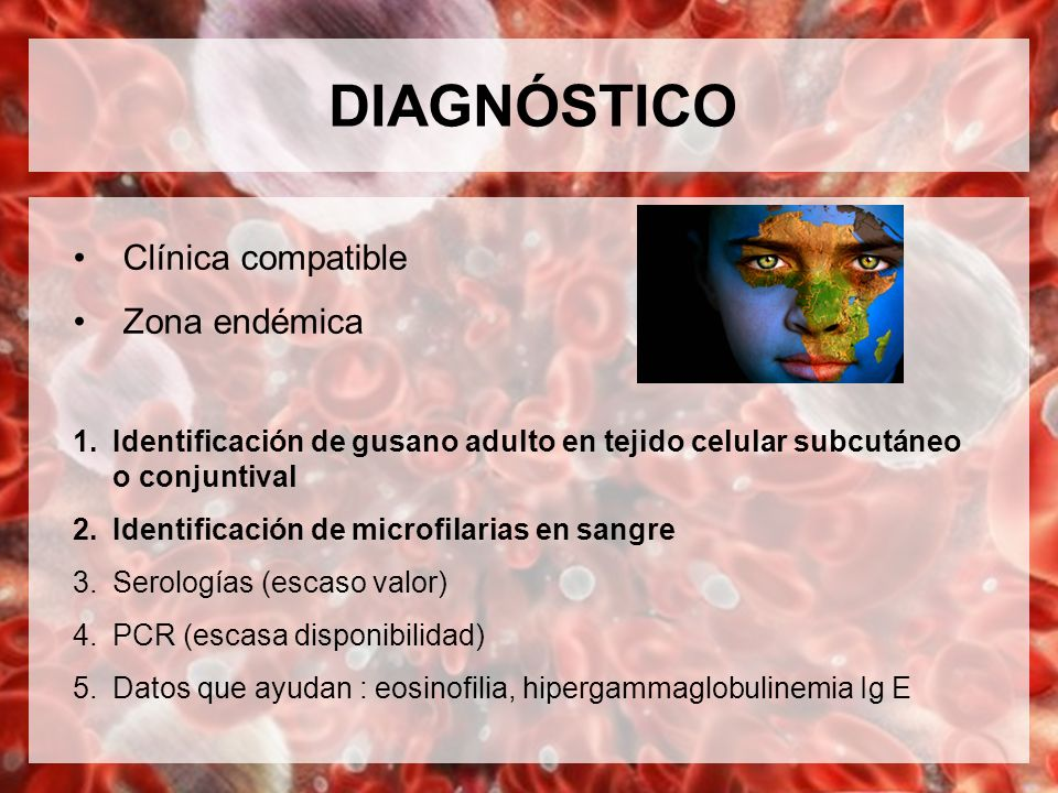 DIAGNÓSTICO Clínica compatible Zona endémica