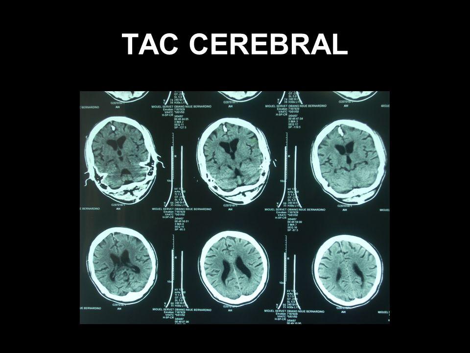 TAC CEREBRAL