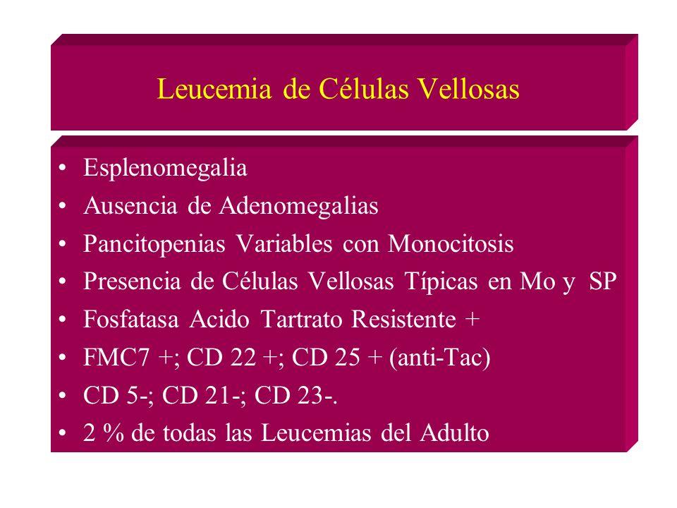 Leucemia de Células Vellosas