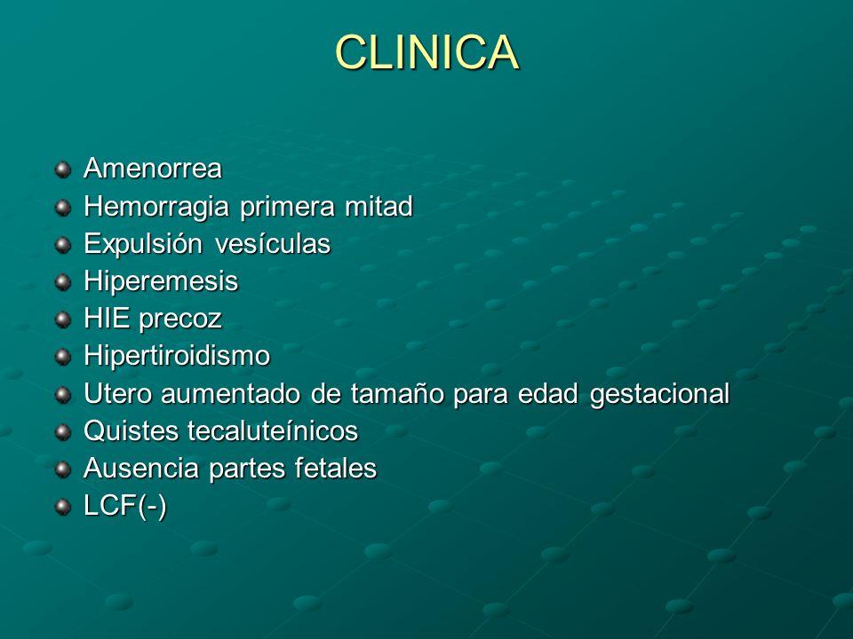 CLINICA Amenorrea Hemorragia primera mitad Expulsión vesículas