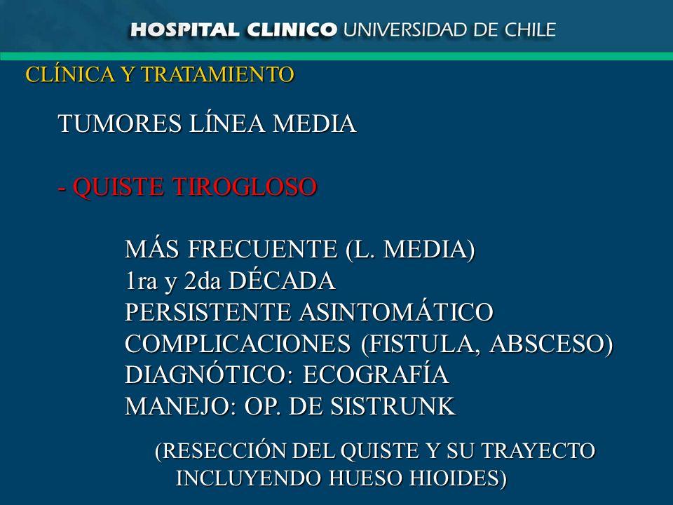 (RESECCIÓN DEL QUISTE Y SU TRAYECTO INCLUYENDO HUESO HIOIDES)
