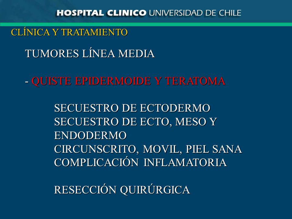 - QUISTE EPIDERMOIDE Y TERATOMA SECUESTRO DE ECTODERMO