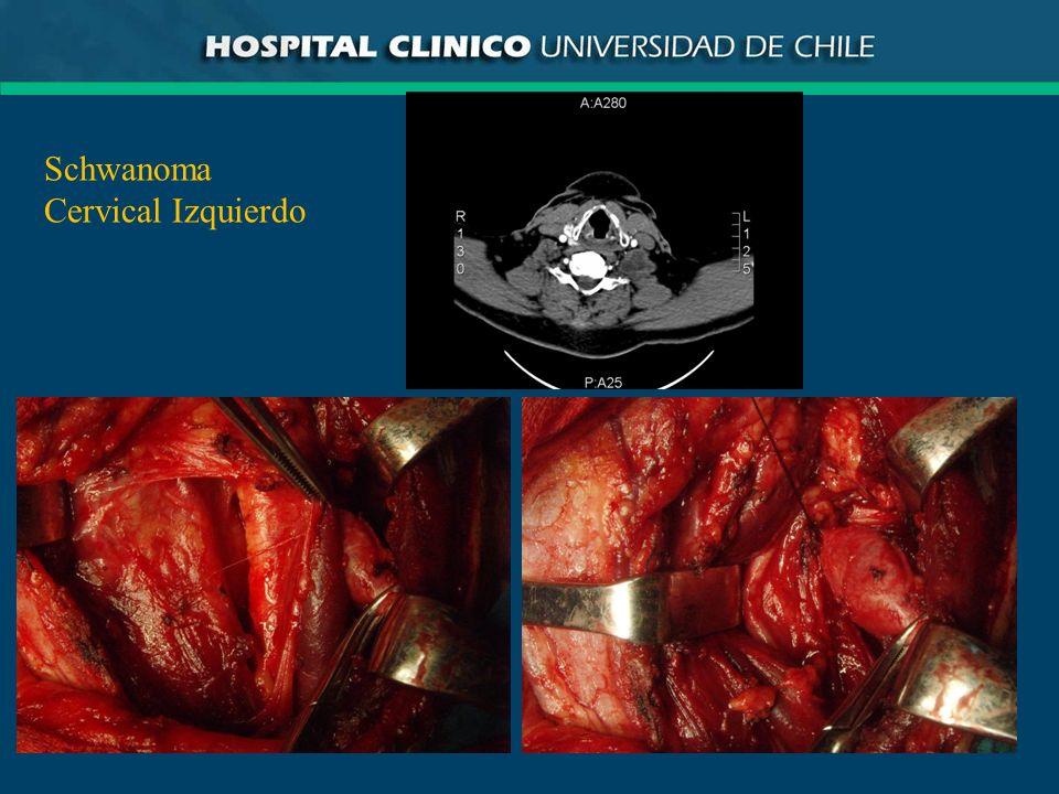 Schwanoma Cervical Izquierdo
