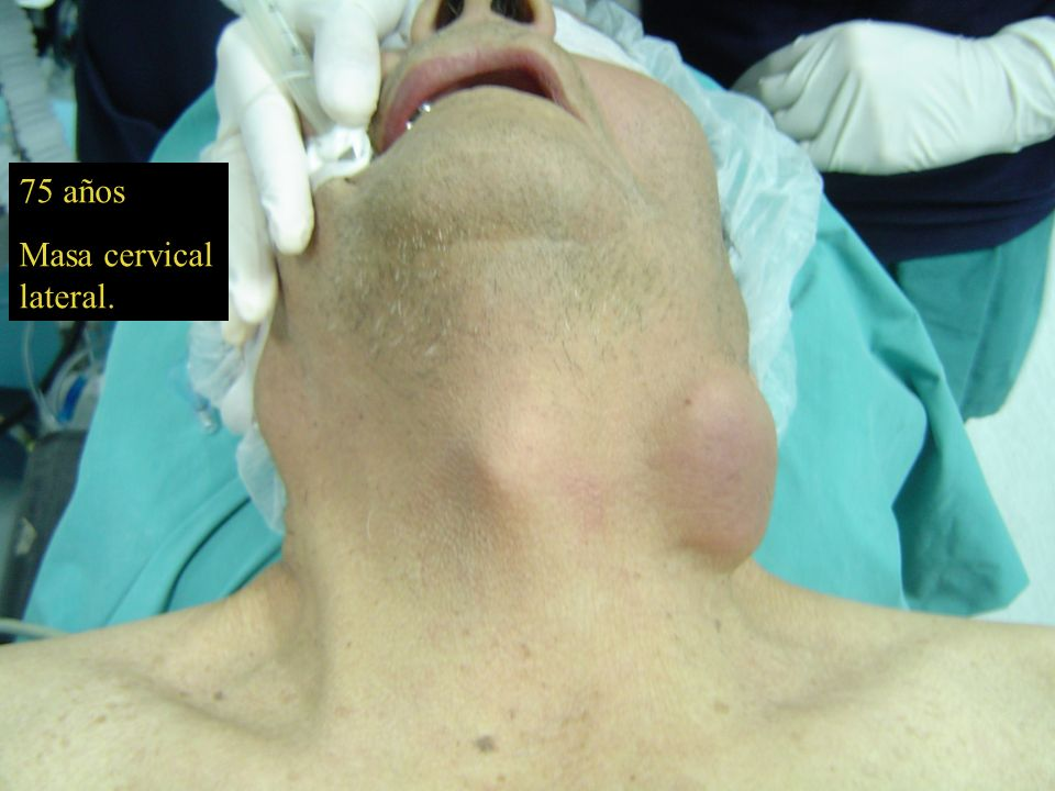 75 años Masa cervical lateral.