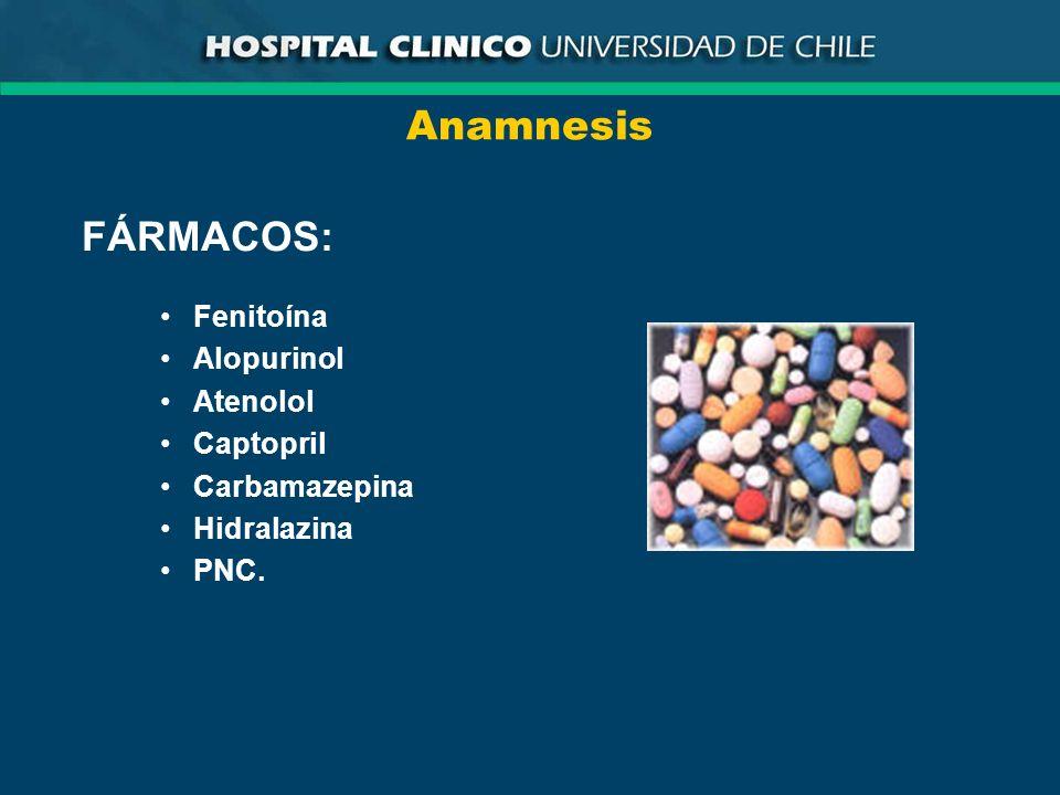 Anamnesis FÁRMACOS: Fenitoína Alopurinol Atenolol Captopril