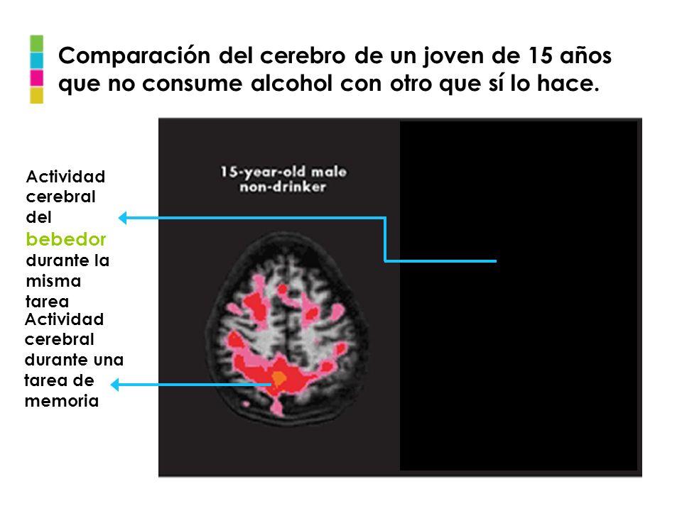 Comparación del cerebro de un joven de 15 años que no consume alcohol con otro que sí lo hace.
