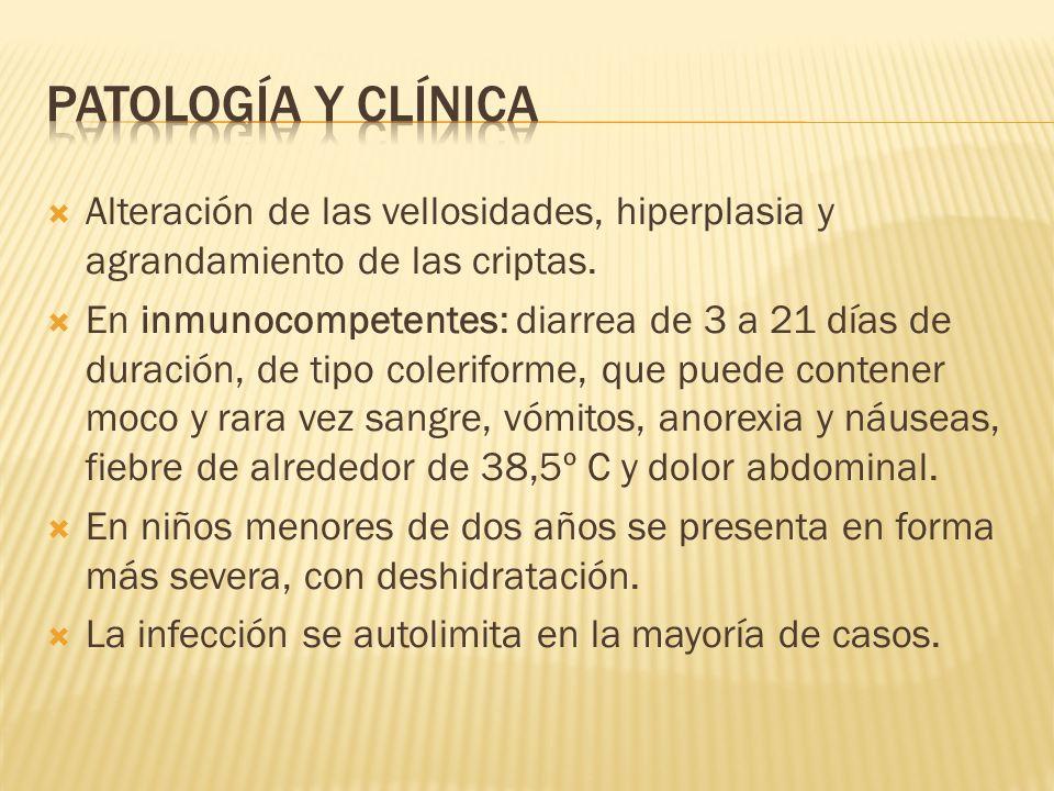 Patología y Clínica Alteración de las vellosidades, hiperplasia y agrandamiento de las criptas.