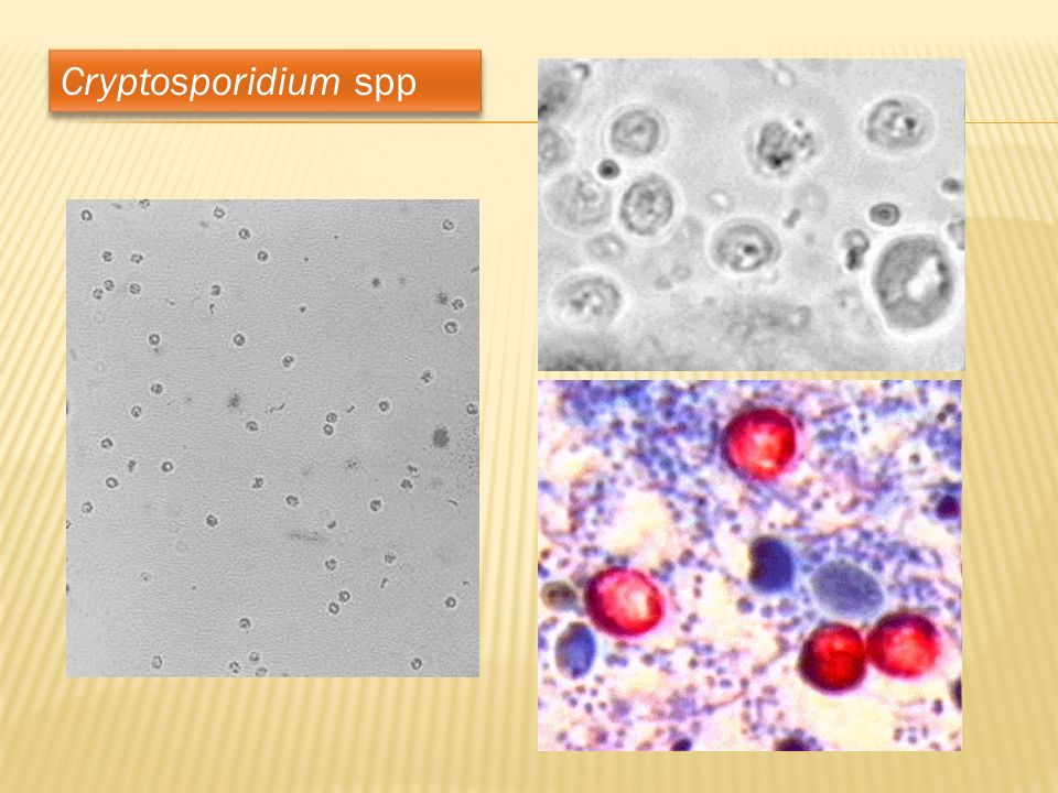 Cryptosporidium spp