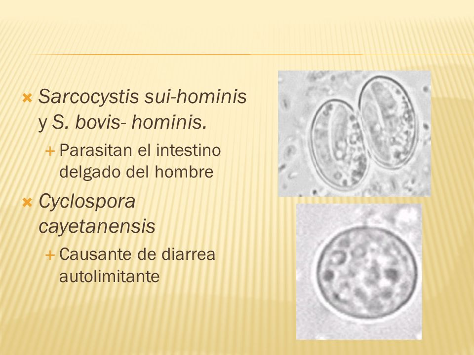 Sarcocystis sui-hominis y S. bovis- hominis.