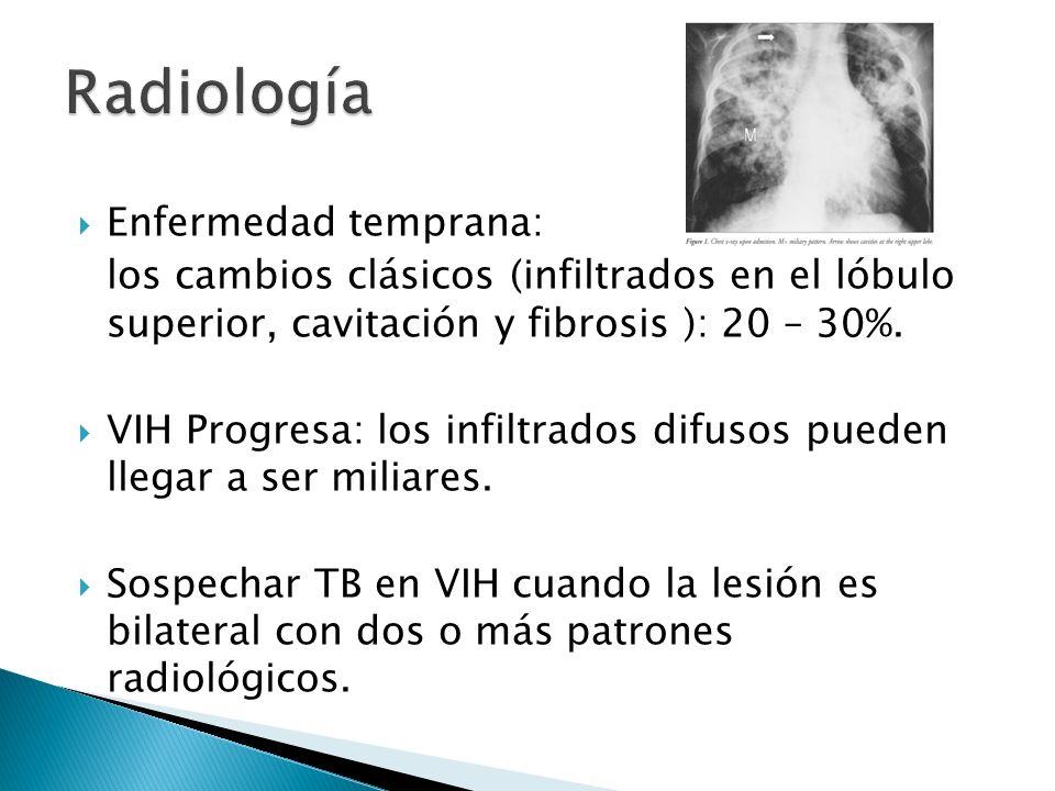 Radiología Enfermedad temprana: