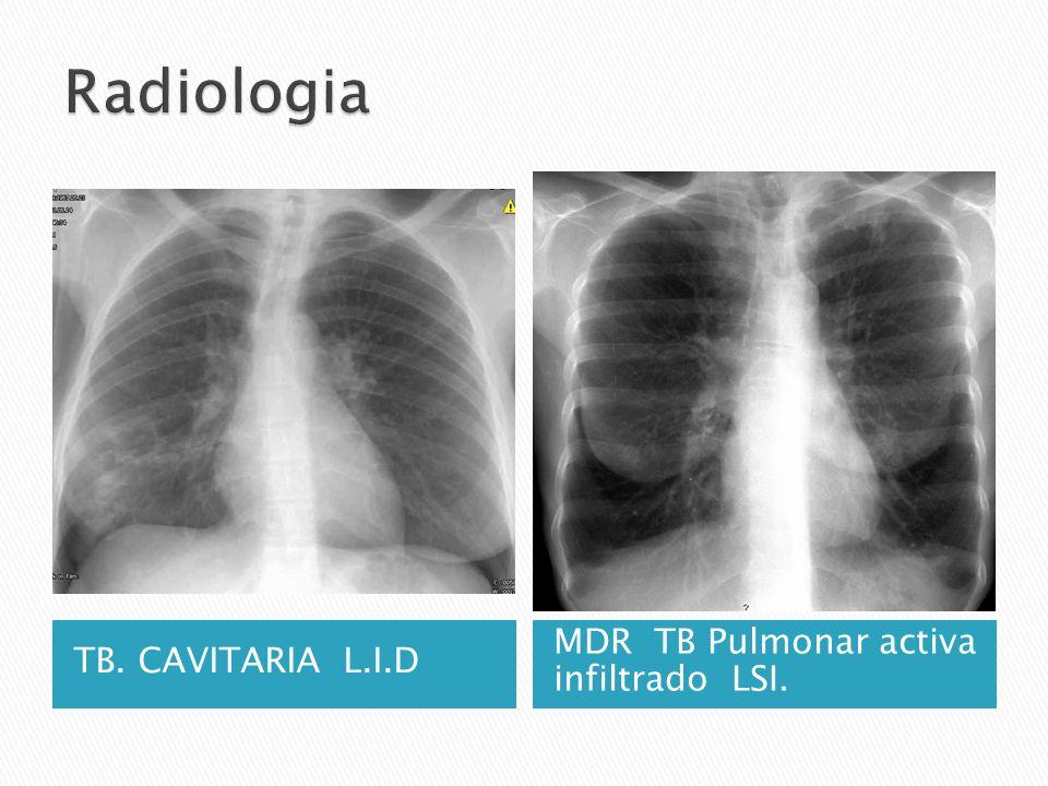 Radiologia TB. CAVITARIA L.I.D MDR TB Pulmonar activa infiltrado LSI.