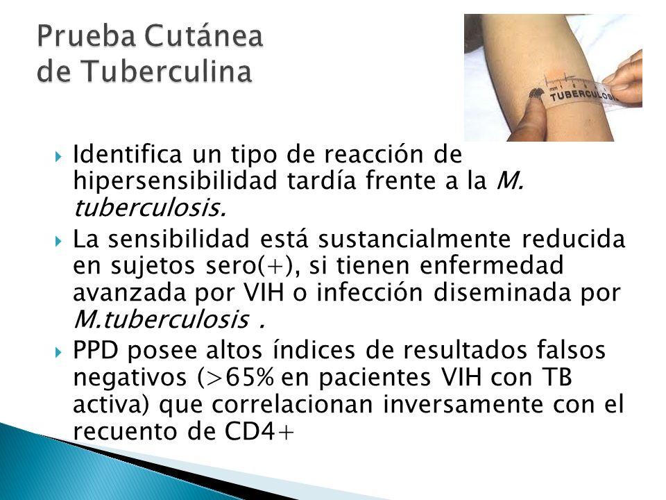 Prueba Cutánea de Tuberculina