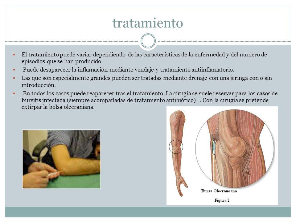 tratamiento El tratamiento puede variar dependiendo de las características de la enfermedad y del numero de episodios que se han producido.