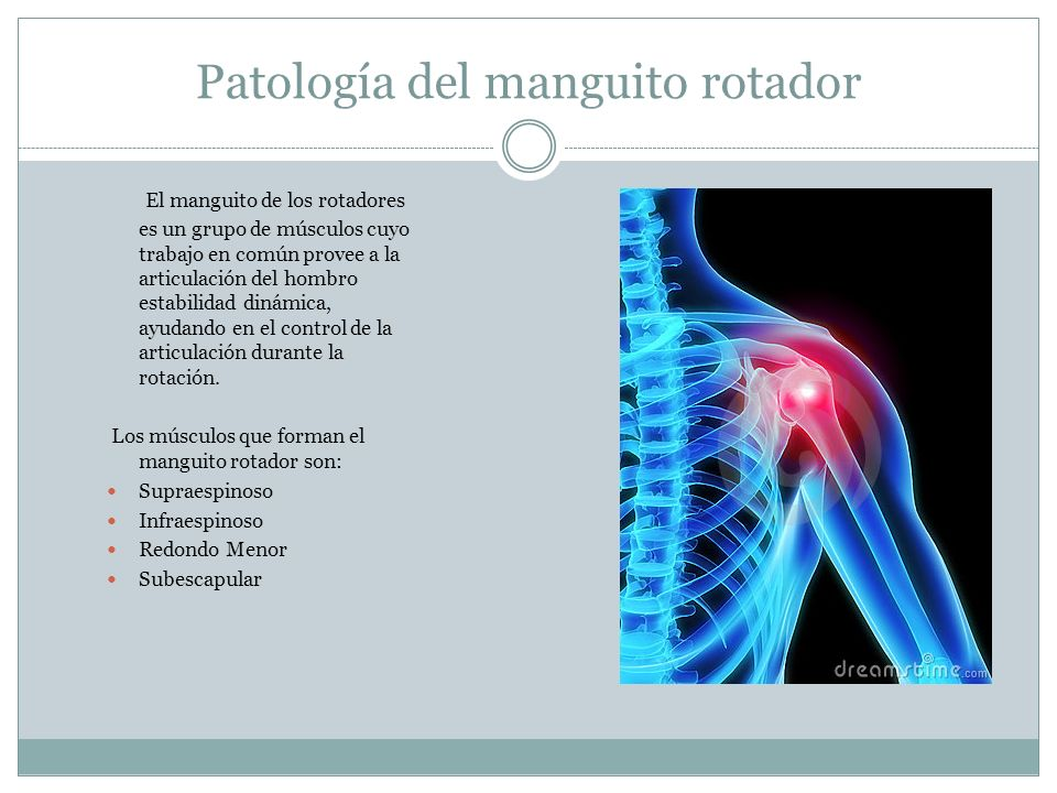Patología del manguito rotador