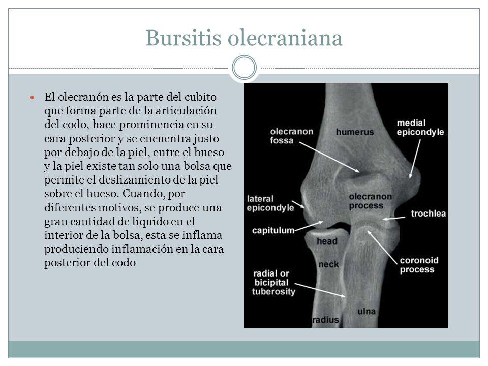 Bursitis olecraniana