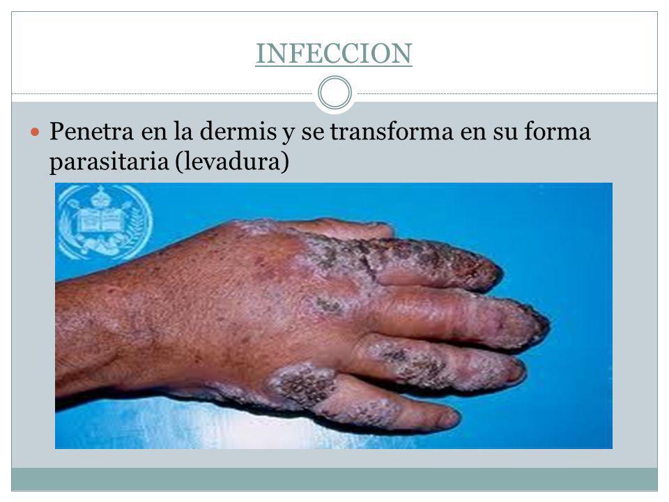 INFECCION Penetra en la dermis y se transforma en su forma parasitaria (levadura)