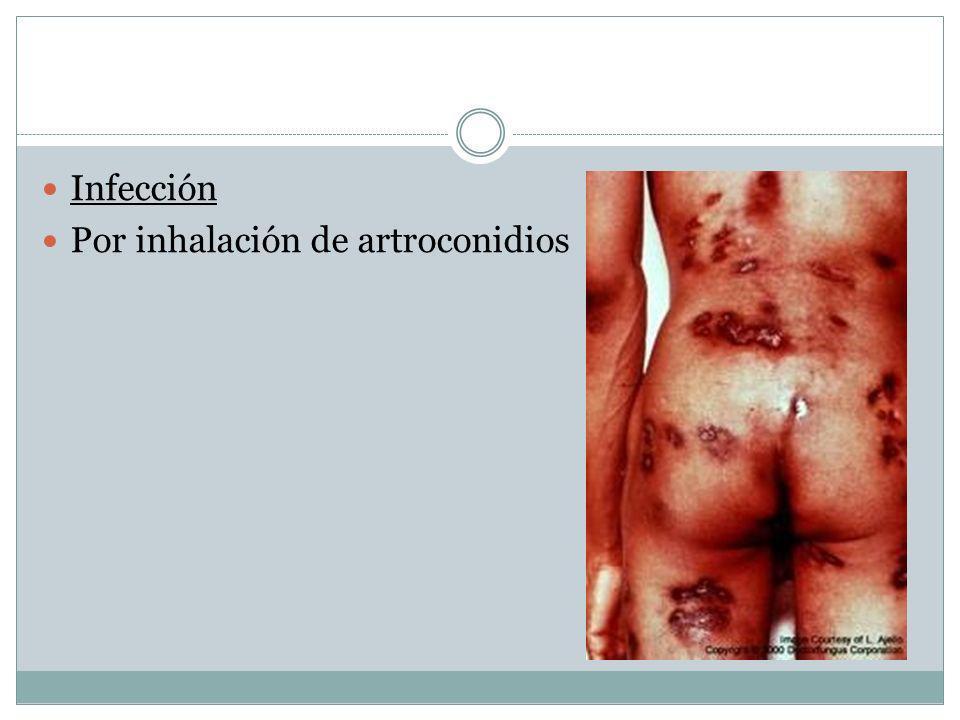 Infección Por inhalación de artroconidios